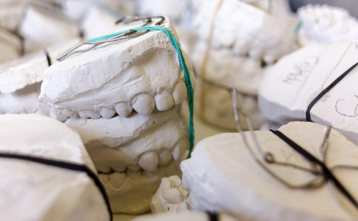 Zła sposób żywienia się to większe braki w zębach oraz dodatkowo ich brak