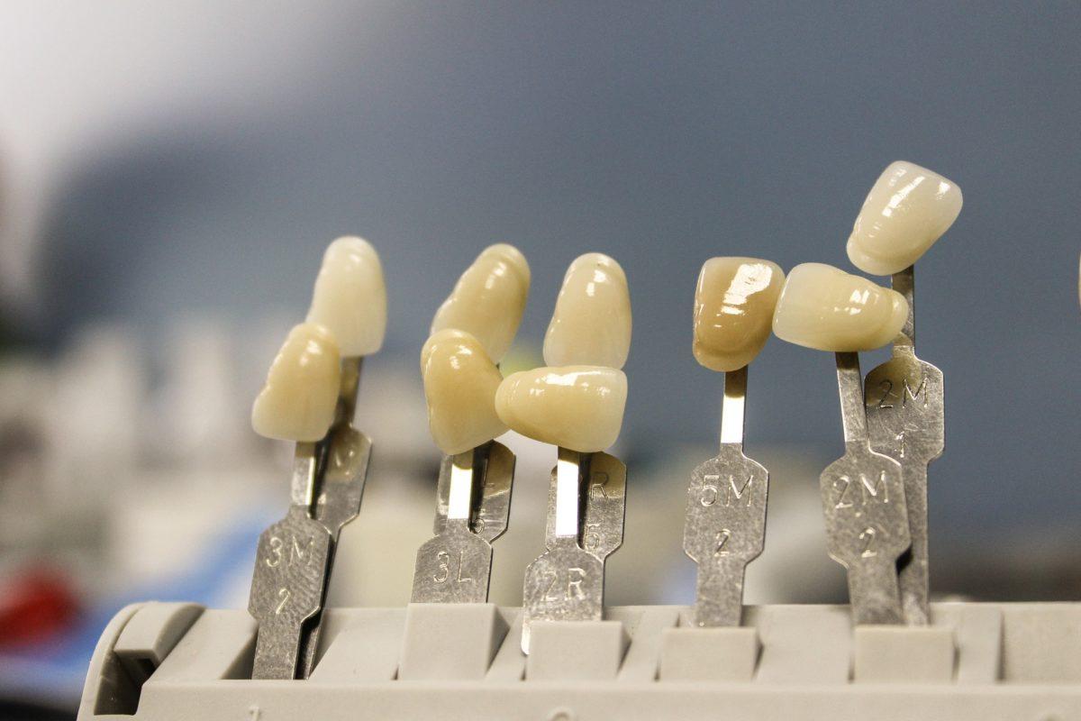Ładne zdrowe zęby oraz niesamowity cudny uśmieszek to powód do płenego uśmiechu.